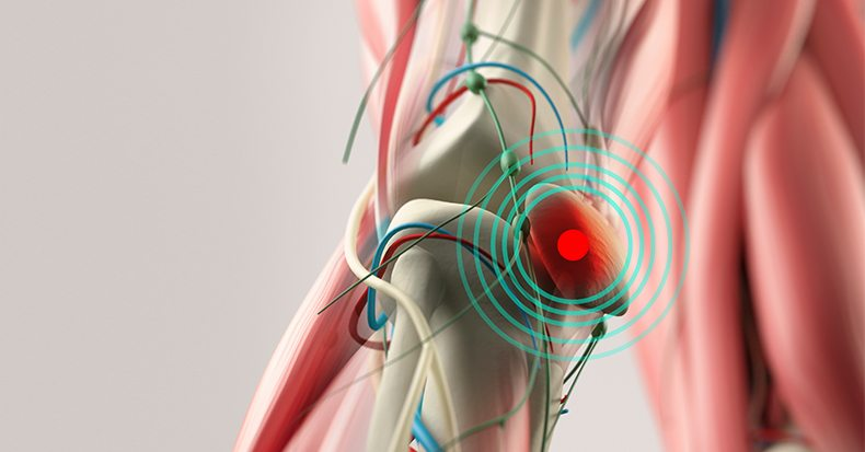 Knee Pain – What's the Cause?