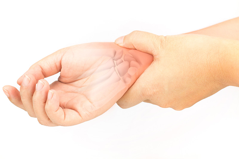 Carpal Tunnel Syndrome problems